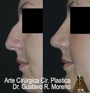 Rinoplastia Rio de Janeiro e Brasília: imagem mostrando dorso nasal  e nariz grande tratados com rinoplastia estética