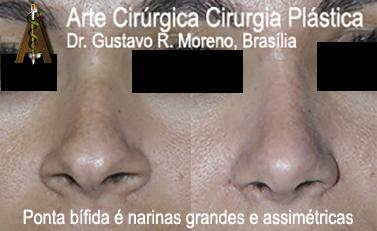 Rinoplastia Rio de Janeiro e Brasília: imagem mostrando paciente com narinas grandes e ponta nasal bífida