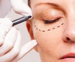Blefaroplastia | Cirurgia das Pálpebras | Dr. Gustavo R Moreno | Brasília, DF