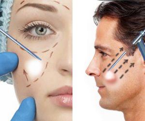 Ritidoplastia Endoscópica | Lifting Facial por Vídeo | Dr. Gustavo R. Moreno, Brasília, DF