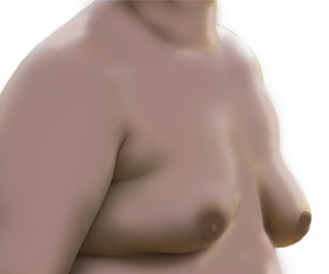 Plástica Mamária Masculina | Ginecomastia | Dr. Gustavo R Moreno, Brasília, DF