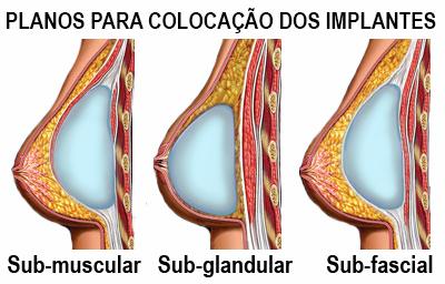 Planos para a colocação de próteses de mama Rio de Janeiro e Brasília