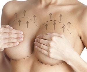 mastopexia, lifting ou elevação das mamas em brasília
