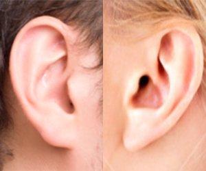 Otoplastia em brasilia plastica das orelhas de abano