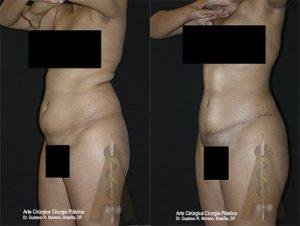 Cirurgia de contorno corporal Brasília