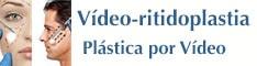 Plástica Facial por vídeo Rio de Janeiro e Brasília, ritidoplastia endoscópica