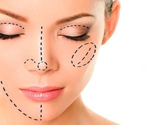 Lipofilling lipoescultura facial Brasilia