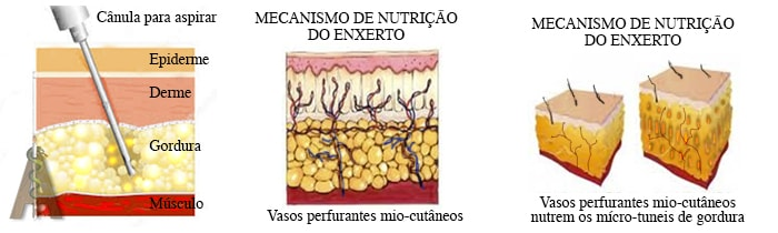 lipoescultura ou lipoplastia estruturada