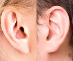 Otoplastia: correção das orelhas de abano no Rio de Janeiro e Brasília