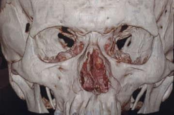 Rinoplastia Rio de Janeiro e Brasília. Imagem de tomografia com reconstrução 3D mostrando desvio do Septo Nasal