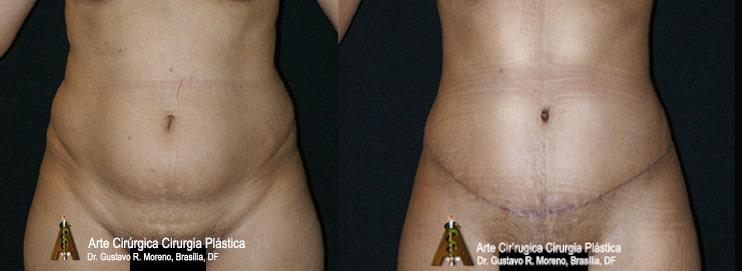 Abdominoplastia Rio de Janeiro e Brasília: imagem mostrando o tamanho da cicatriz abdominal